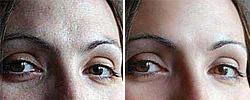 Soften Skin Effect Action