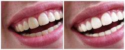 Teeth Whitening PS Action